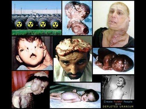Bildquelle: eineweltdiplomaten.wordpress.com Verstrahlte Opfer durch Einsatz von Uranmantelgeschossen